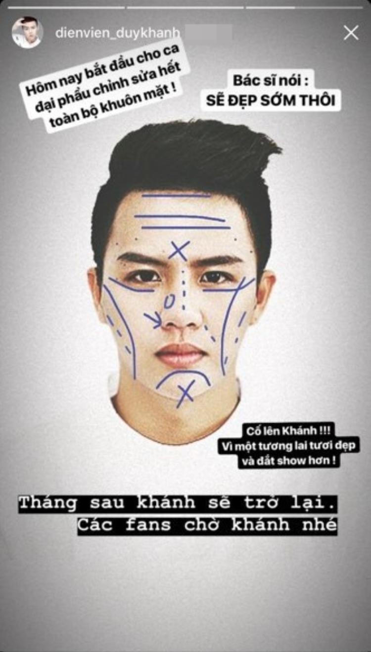 """Diễn viên Duy Khánh có cú """"lừa"""" fan ngoạn mục khi đăng ảnh sắp phẫu thuật thẩm mỹ."""