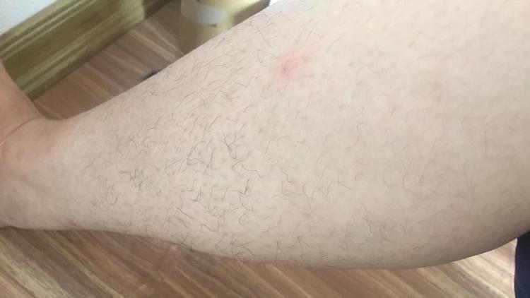 Chân trắng để làm gì khi mà lông chân của bạn cứ đen xì lại còn xoăn tít? - (Ảnh: Lê Hương).