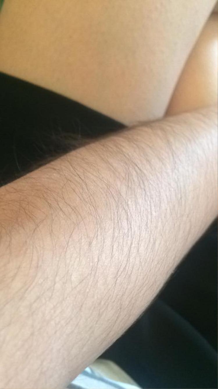 Đây có phải bộ lông tay dài nhất rồi không? - (Nguyen Hoa).