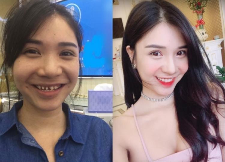"""Người đẹp cũng """"thăng hạng nhan sắc"""" nhờ đi làm răng sứ."""