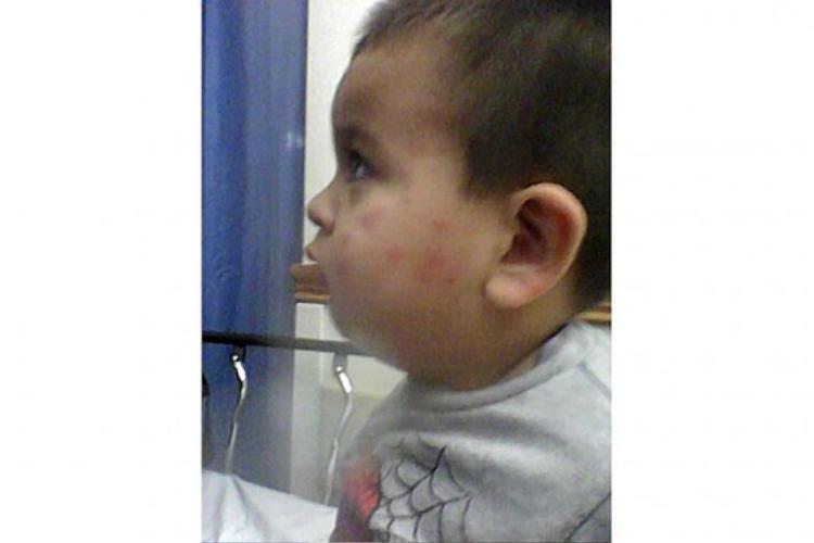 Cậu bé 3 tuổi bị rệp cắn khắp người. Ảnh:Brian Virag