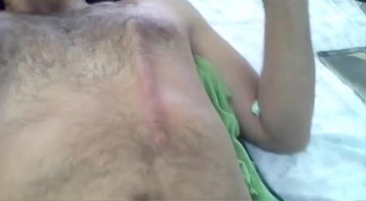 Thanh kim loại đâm xuyên qua cơ thể, hiện lên rõ rệt dưới da người đàn ông.