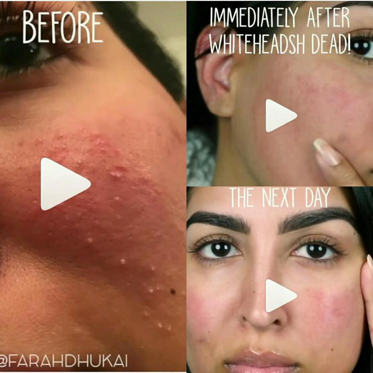 Kết quả ngay sau khi xông hơi, đắp mặt (ảnh trên bên phải) và qua ngày hôm sau (ảnh dưới bên phải).