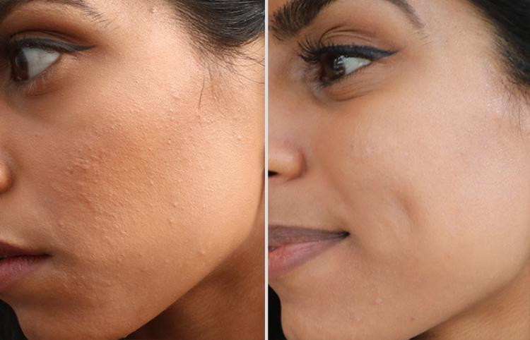 Trước và sau khi được peel da.(Ảnh: acne)