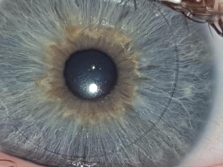 15. Hình ảnh diệu kỳ của con ngươi trong một cuộc phẫu thuật mắt. Ảnh: ©F13ND