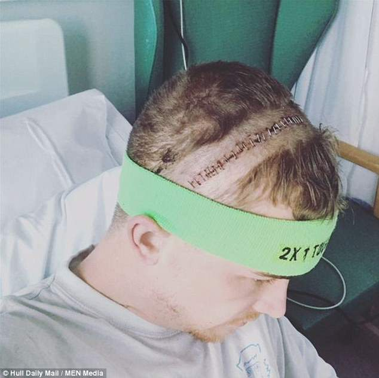 Đầu của Matt gần như bị bổ đôi. Ảnh: MEN Media