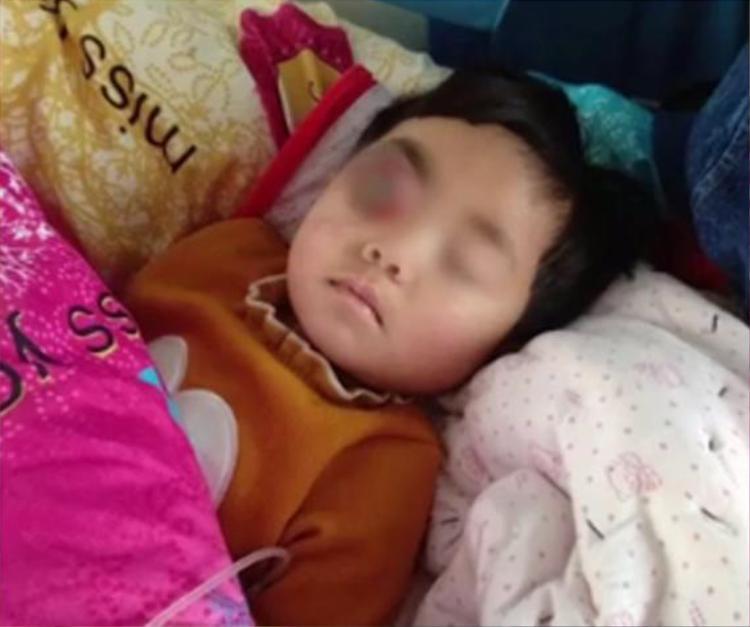 Bé gái bị một khối u ở mắt.
