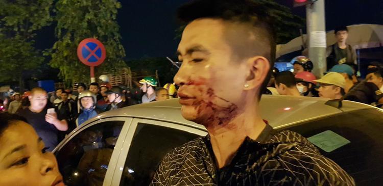 Người chồng bị đánh chảy máu ở mặt.