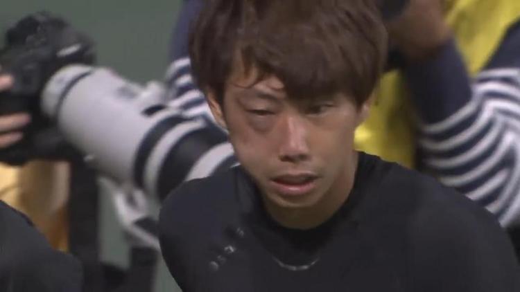 Va chạm kinh hoàng, thủ môn Nhật Bản gãy xương mặt có nguy cơ lỡ World Cup