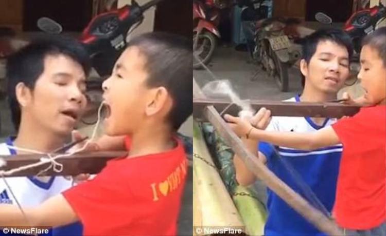 Màn nhổ răng đầy thú vị của hai cha con. Ảnh: NewsFlare