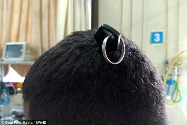 Chàng trai 19 tuổi ở Ấn Độ bị cắm thẳng chìa khóa xe máy vào hộp sọ.