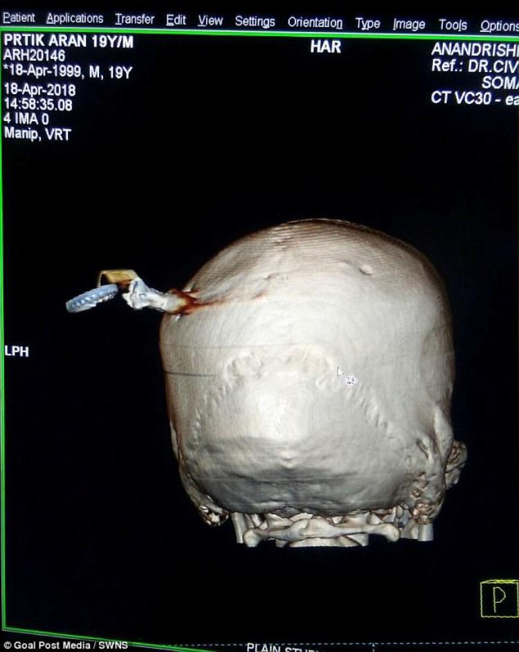 Các bác sĩ phải cắt một phần xương sọ để mở hộp sọ cứu sống nam thanh niên.