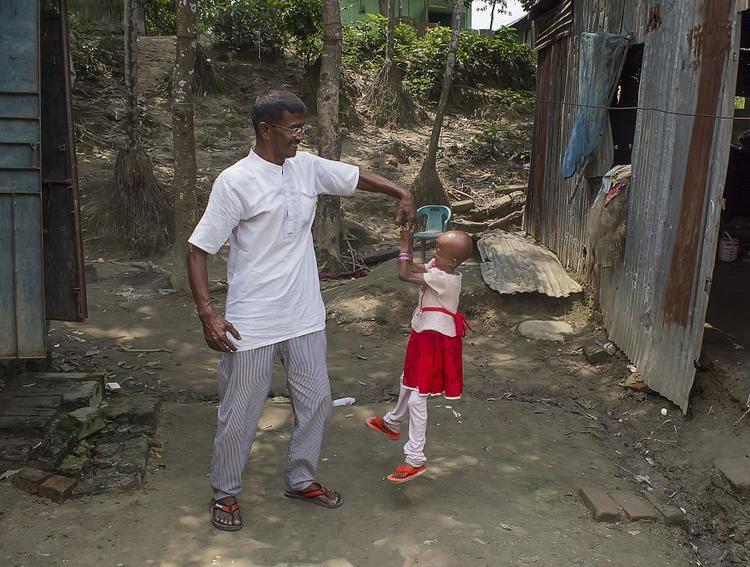 Khoảng 3 tháng tuổi, chị Josna bất ngờ nhận thấy cơ thể con gái phát triển khó khăn hơn so với những bé cùng tuổi và Nitu bị rụng tóc rất nhanh. Sau khi hỏi ý kiến nhiều người, chị Josna quyết định đưa con tới khám bác sĩ địa phương. Họ để cô bé uống một số loại thuốc trị bệnh dạ dày. Thật không may, các chẩn đoán của bác sĩ là sai và tóc của em rụng hết chỉ một đêm sau khi uống loại thuốc đó.