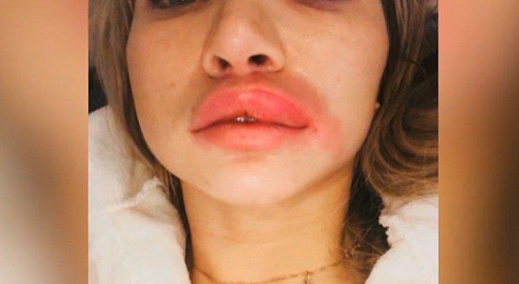 Elizaveta Tkachenko quyết định trùng tu nhan sắc bằng cách tiêm filler vào mặt nhưng vì ham rẻ nên đã nhờ một người bạn tiêm cho cô tại nhà.