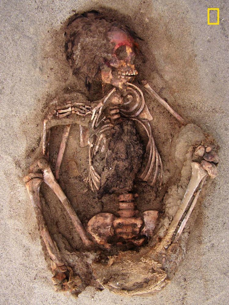 Có những vết chém trên xương ức và xương sườn bị chặt, cho thấy phần ngực bị mổ phanh ra. Ảnh: National Geographic