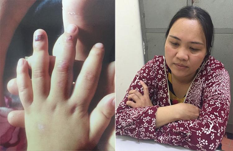 Những vết bầm dập trên móng tay cháu bé do bị đánh đập và đối tượng Vũ Thị Hải. Ảnh: Nguyệt My.