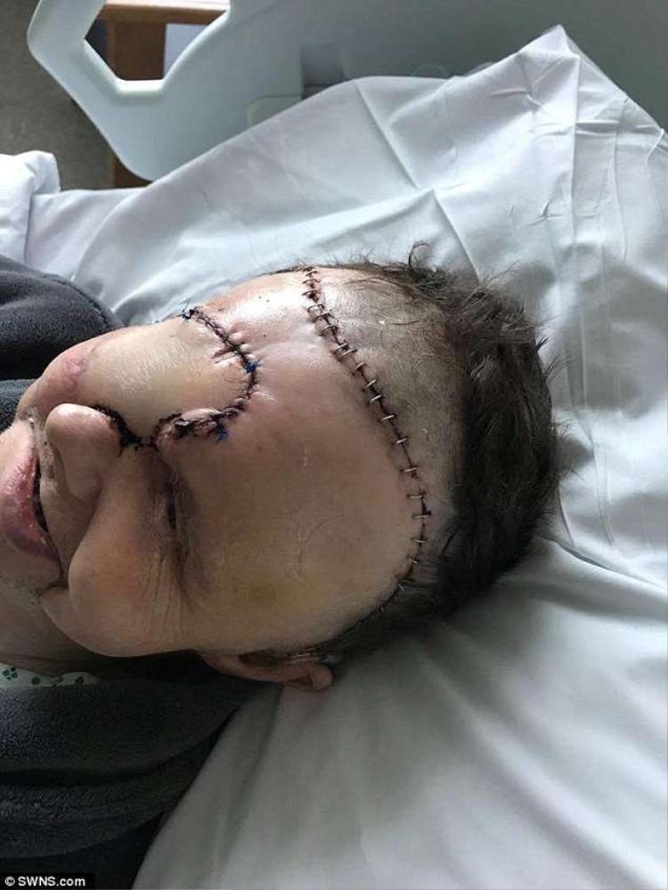 Căn bệnh khiến Mandy phải bỏ đi một bên mắt phải, xương mũi và một phần xương hàm.