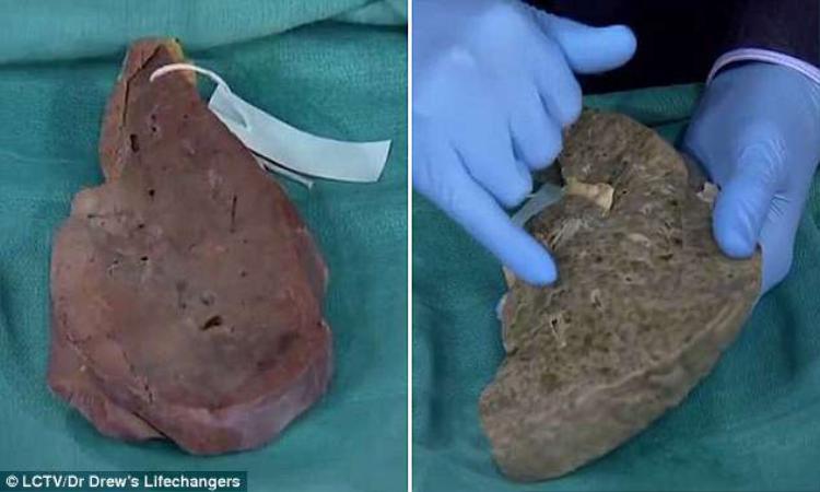 Trong clip, Tiến sĩ Pinsky cho thấy một gan khỏe mạnh (trái) và lá gan có nhiều sẹo trên bề mặt.
