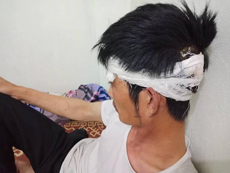 Anh Điềm cho biết mong muốn cơ quan chức năng xử lý việc người đàn ông đã hành hung mình.