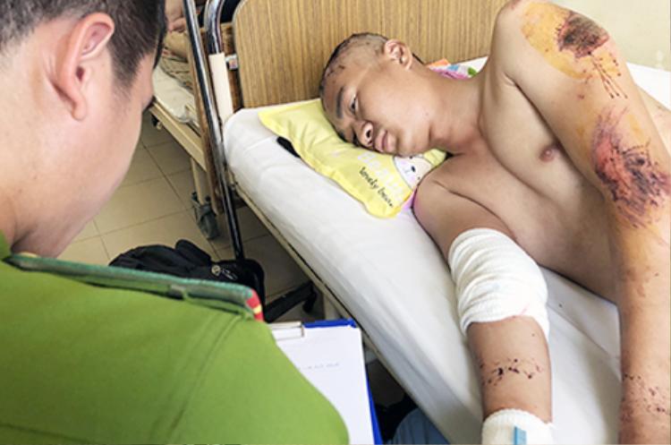 Hướng dẫn viên du lịch dù đã hồi tỉnh nhưng trên người vẫn dầy đặc vết thương. Ảnh: VNE