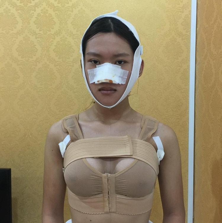 Cô cho biết, phẫu thuật nâng ngực là cuộc phẫu thuật đau đớn nhất.