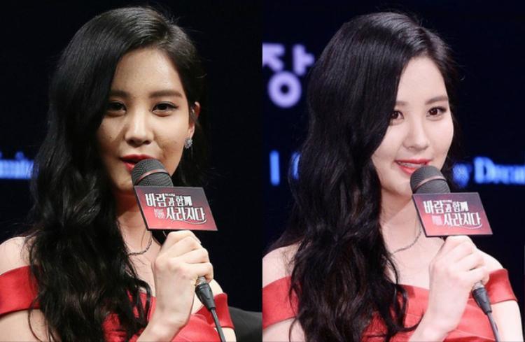 Lịch trình bận rộn khiến làn da Seohyun không kịp thở. Cô bị nhiều đốm mụn sần.