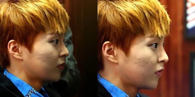 """Xiumin (EXO) vẫn được biết đến với biệt danh """"bánh bao đáng yêu"""" nhưng hóa ra làn da của chàng idol cũng không tránh được sự xâm lăng của """"giặc mụn""""."""