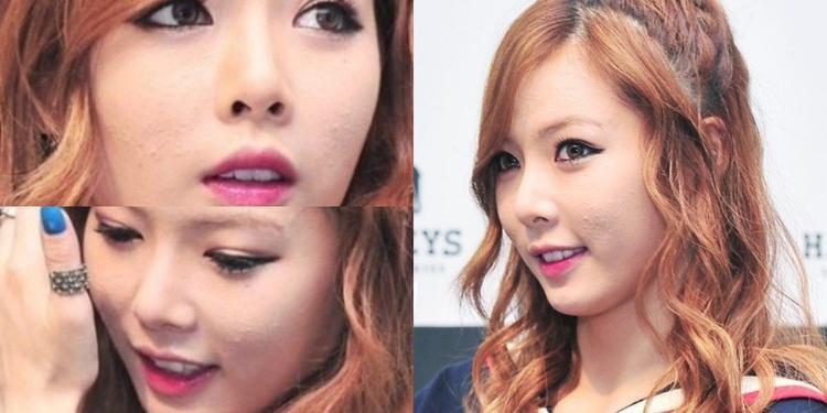 Không có gì bất ngờ khi nữ hoàng sexy HyunA da nổi đầy mụn vì thường xuyên phải trang điểm đậm.