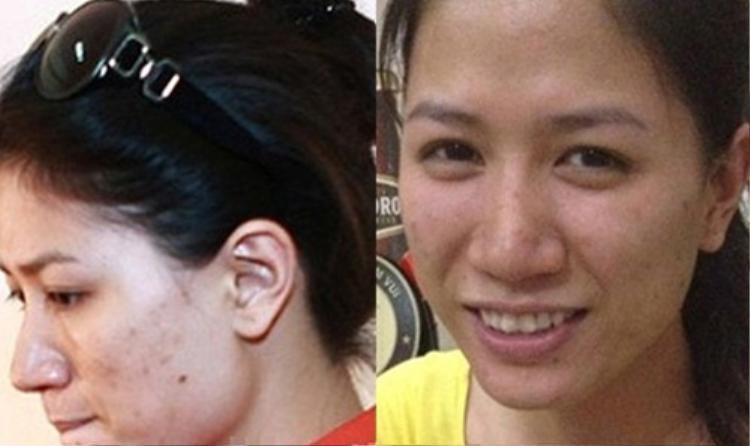 Gương mặt đầy mụn, thâm của người mẫu Trang Trần.