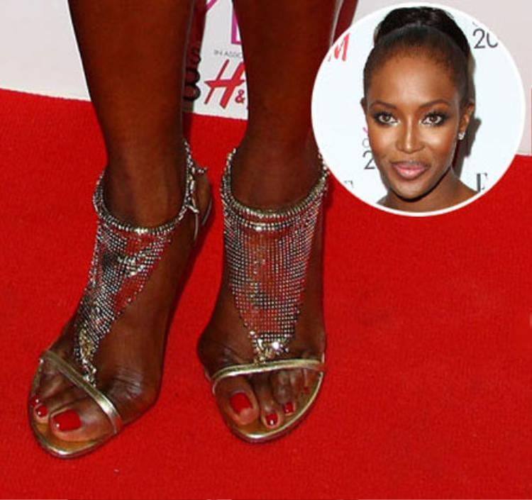 Đây là đôi chân của siêu mẫu Naomi Campbell, bàn chân của cô đã biến dạng theo đúng hình đôi giày cao gót.