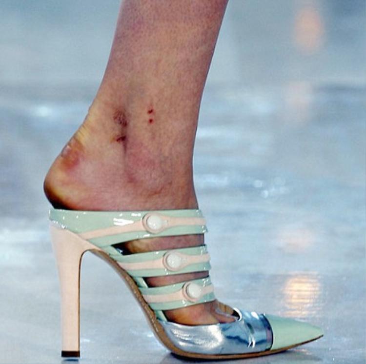 Những vết chai sạn, trầy xước là điều mà hầu hết các người mẫu đều gặp phải do mang giày cao gót quá nhiều.