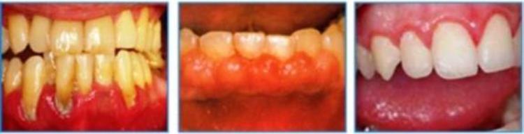 Các bệnh lý răng miệng khiến mất thẩm mỹ và ảnh hưởng nghiêm trọng vấn đề ăn nhai.