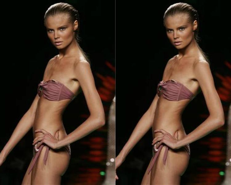 """Siêu mẫu Ana Carolina Reston với thân hình như """"bộ xương di động."""""""