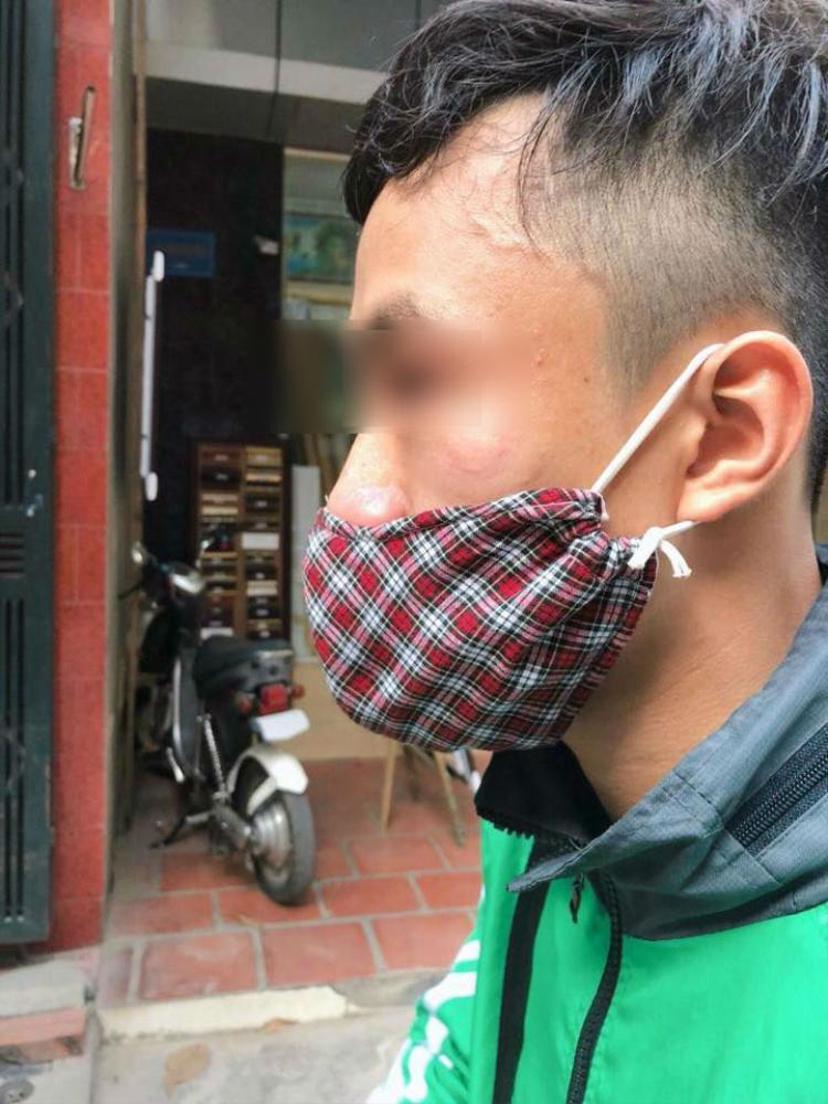 Tài xế Grab Bike bị một người đàn ông vô cớ đấm vào mặt. Ảnh: Joog Nguyen.