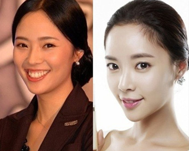 Hàm răng hô của Hwang Jung Eum đã biến mất không để lại dấu vết.