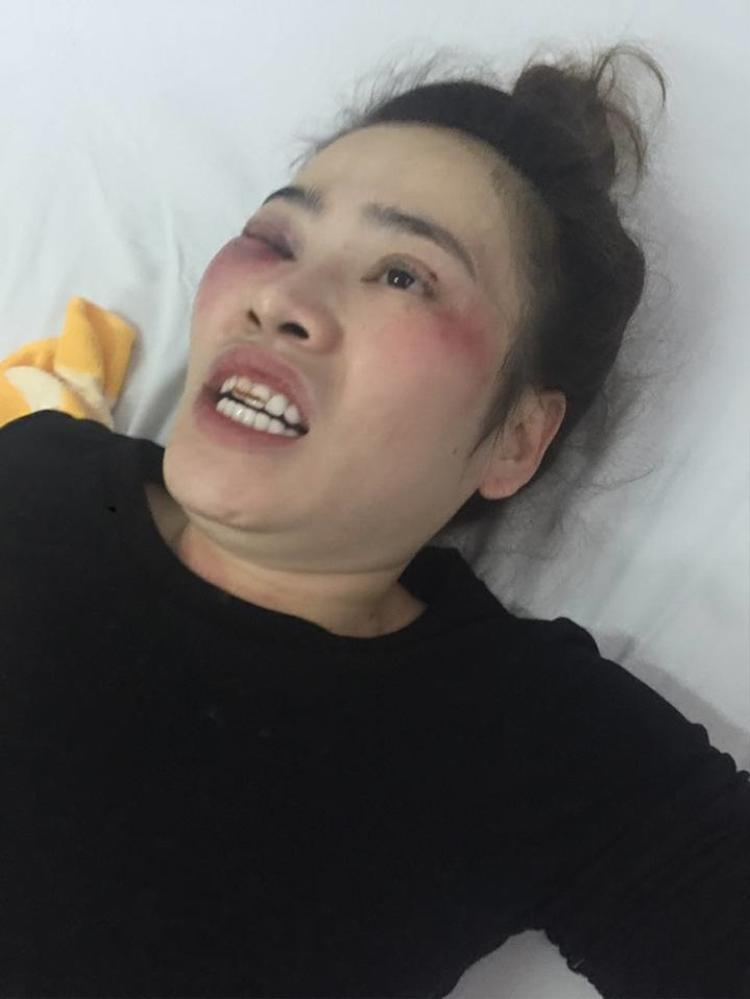 Chị Như lúc mới bị Khang đánh tại quán bánh xèo.