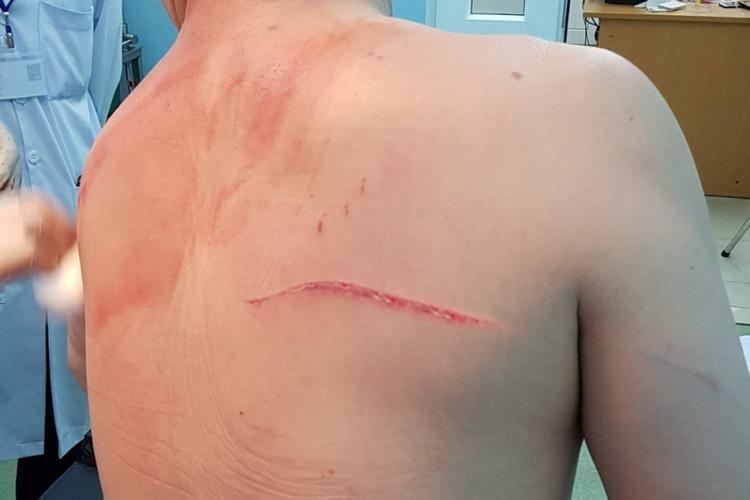 Vết chém trên lưng bác sĩ Thái.
