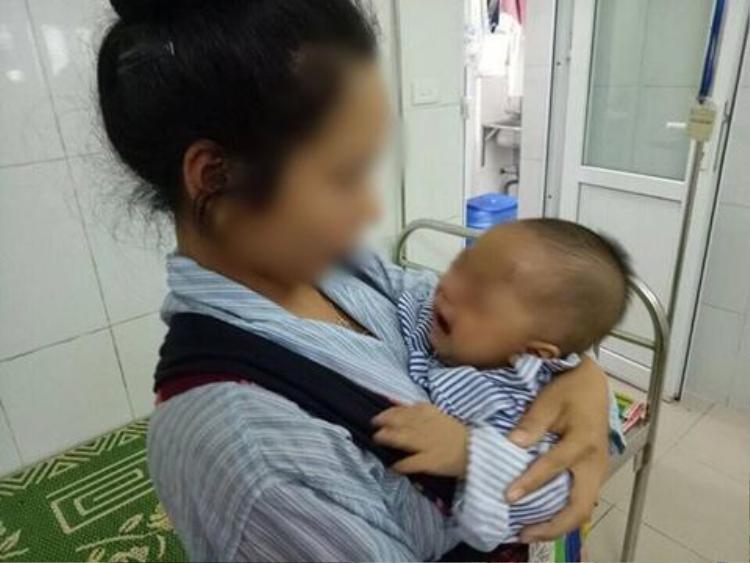 Hai mẹ con cháu bé đang điều trị tại Bệnh viện Mắt Trung ương