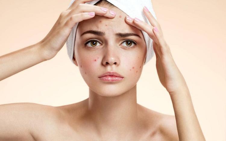 Sử dụng quá nhiều các sản phẩm chăm sóc da sẽ khiến da bạn bị khô