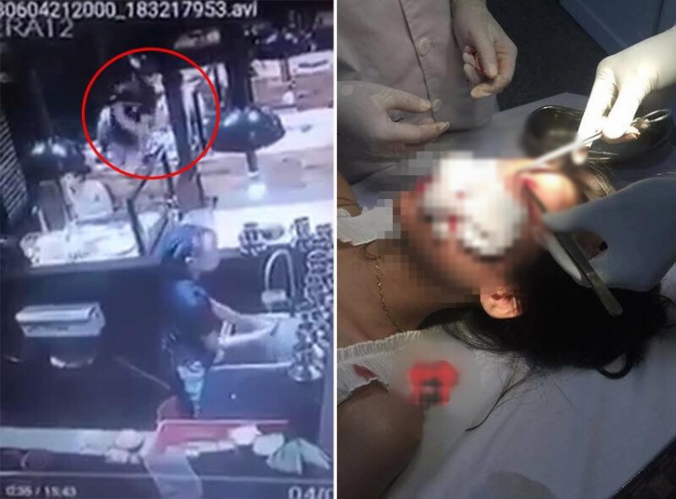 Hình ảnh nạn nhân bị tấn công và phải nhập viện cấp cứu.