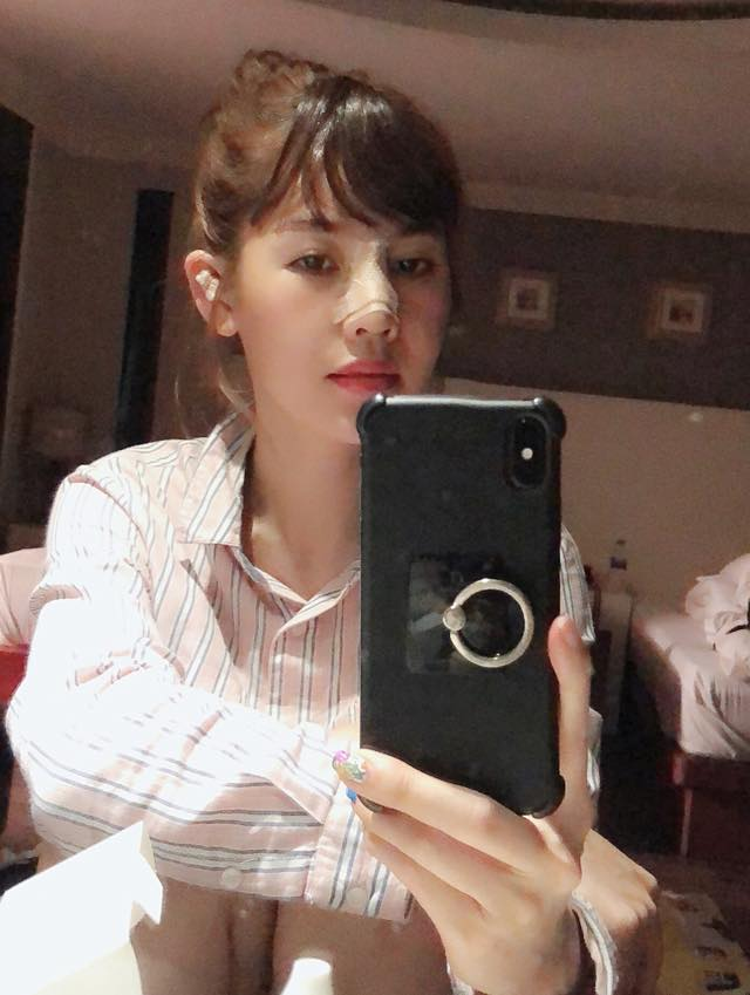 Người đẹp thường xuyên cập nhật những hình ảnh sau phẫu thuật trên mạng xã hội.