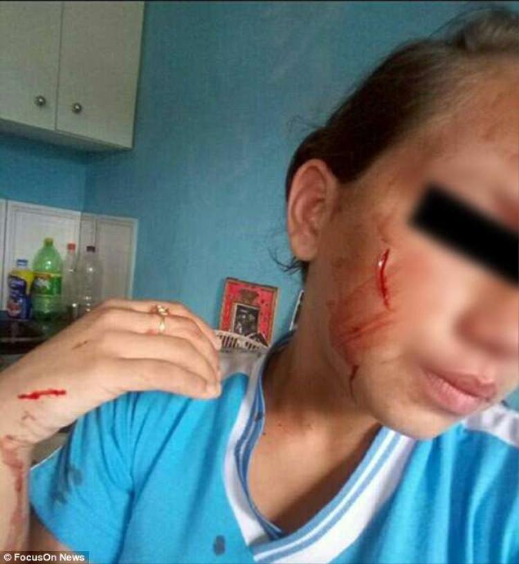 Cô gái 13 tuổi chịu hơn 10 nhát dao ở lưng, ngực, mặt và cánh tay.