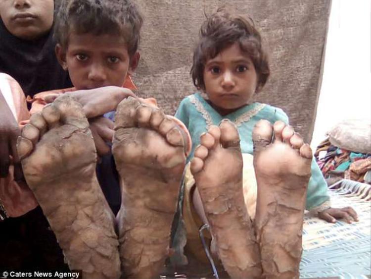 Căn bệnh quái dị khiến những đứa trẻ phải chịu nhiều đau đớn.