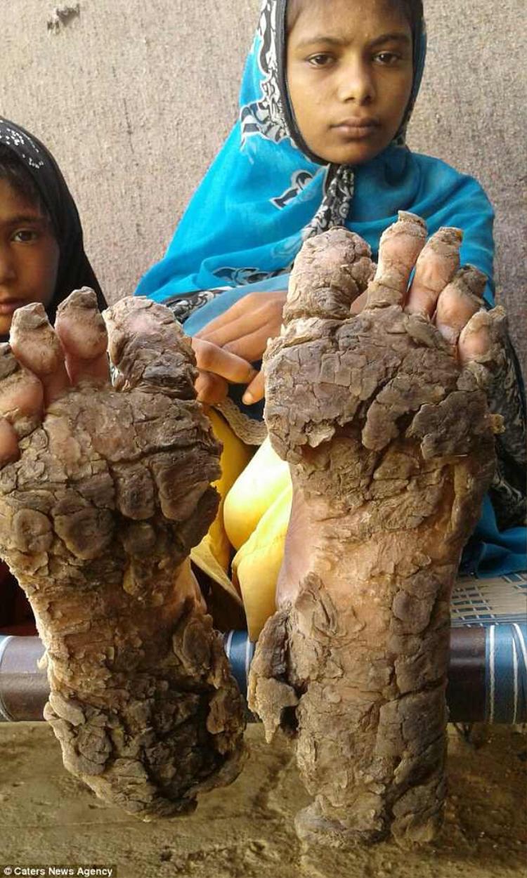Chân của những đứa trẻ bị cứng như đá, khiến chúng gặp nhiều khó khăn trong việc di chuyển.