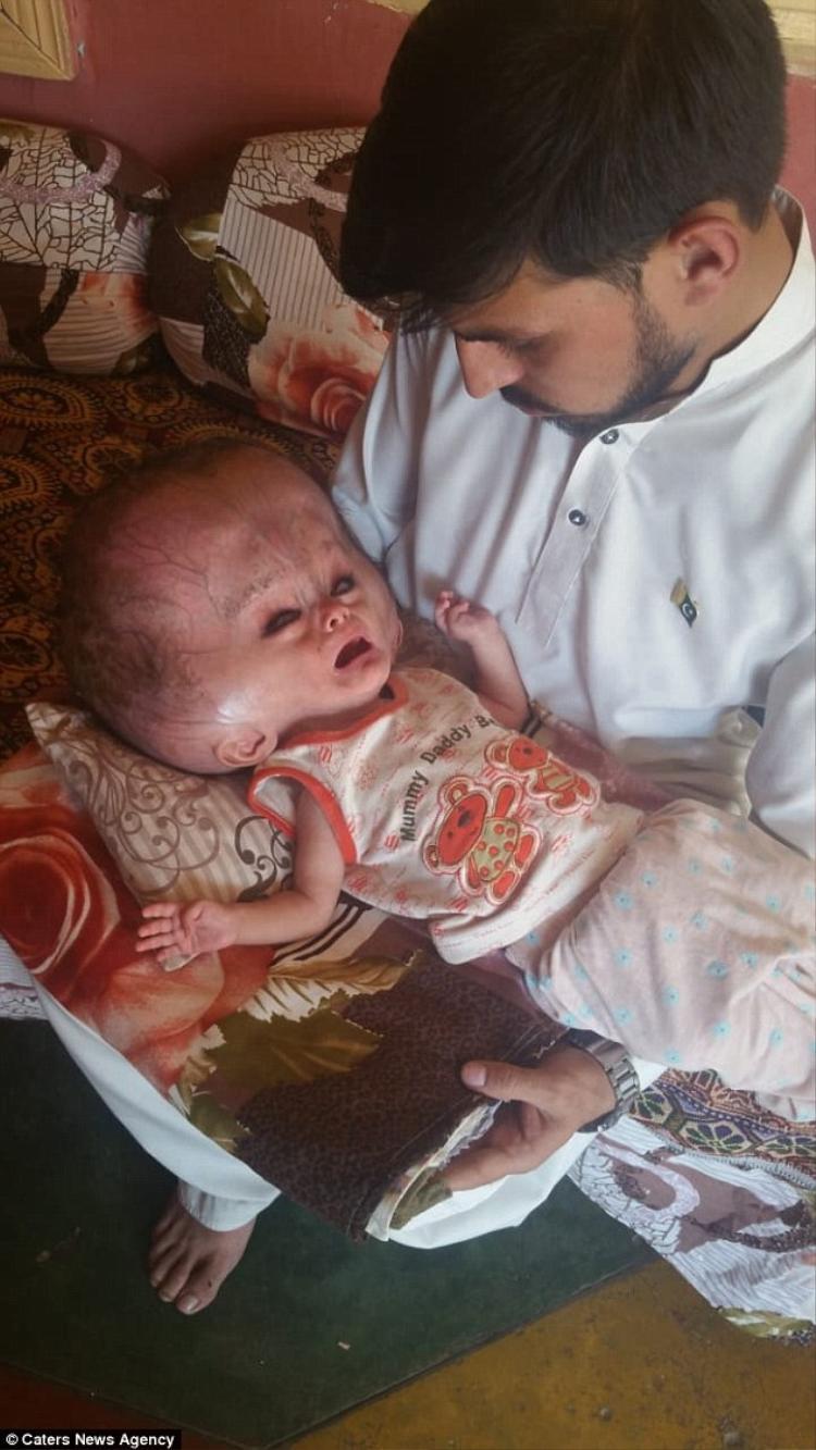 Theo các bác sĩ, kích thước 101 cm là quá lớn so với một em bé 7 tháng tuổi.Ảnh: Caters new agency