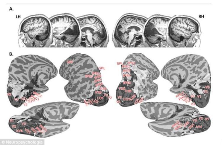 Ảnh scan não cho thấy bà Canning bị thiếu một mẩu mô não có kích thước bằng quả táo ở phía sau não. Ảnh trên tạp chí Neuropscyhologia