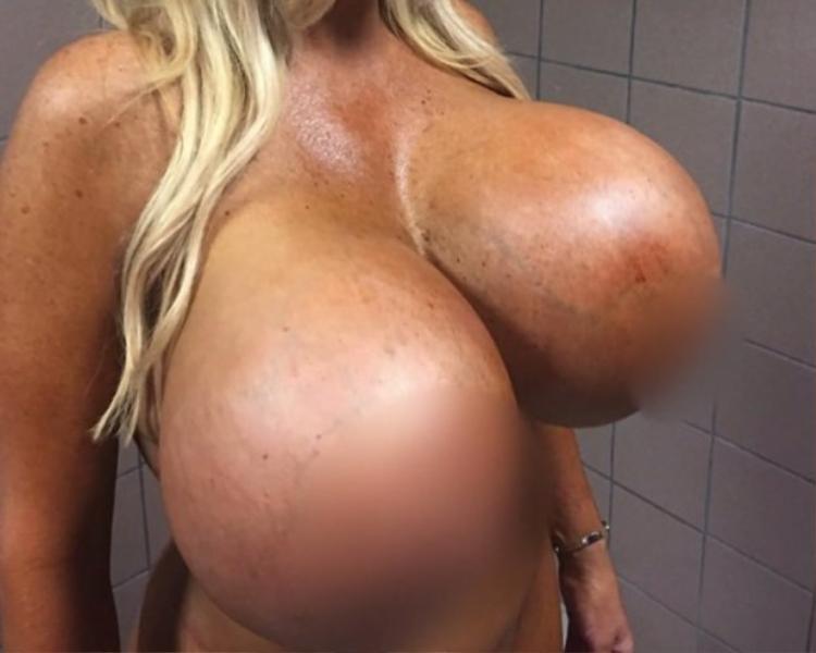 Do kích thước quá khủng, 1 bên ngực của Allegra bị sa trễ rất mất thẩm mỹ.