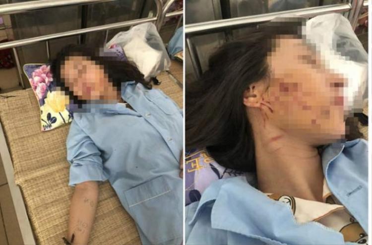 Nạn nhân được điều trị tại bệnh viện.
