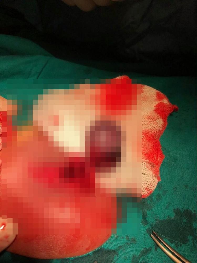 Một bé trai bị xoắn tinh hoàn và hoại tử nặng. (Ảnh: BVCC)