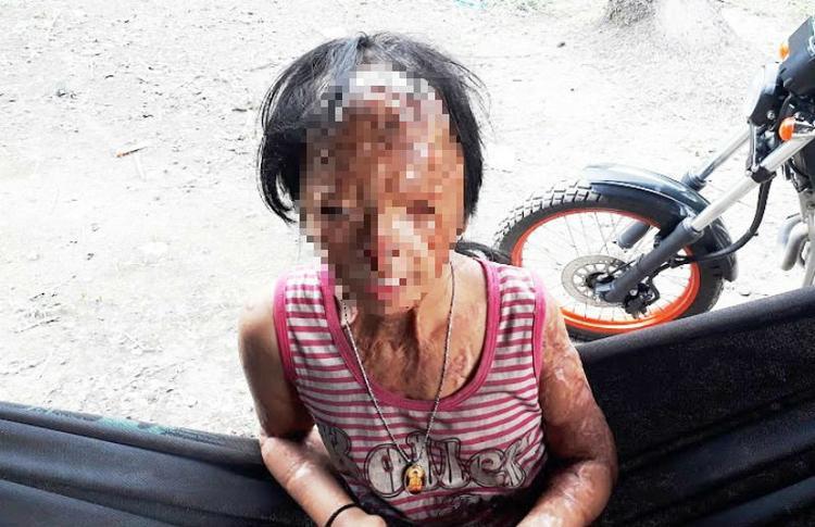 Bé N., nạn nhân bị tình địch của mẹ tạt a xít đến tàn phế (Ảnh: Thanh Lâm).